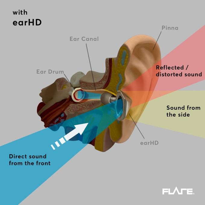 earHD4.jpg